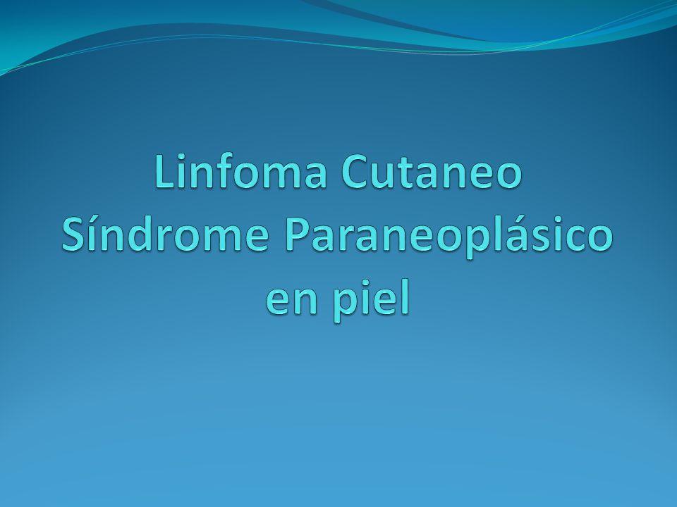 ENFERMEDADES AMPOLLOSAS Pénfigo paraneoplásico Termino acuñado por Anhalt et al en una revisión en 1990 que se refiere a lesiones mucocutáneas atípicas parecidas al eritema exudativo multiforme, con gran alteración mucosa y con anticuerpos circulantes.