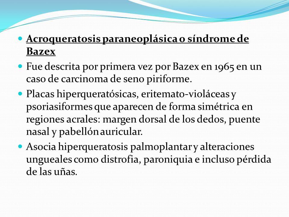 Acroqueratosis paraneoplásica o síndrome de Bazex Fue descrita por primera vez por Bazex en 1965 en un caso de carcinoma de seno piriforme. Placas hip