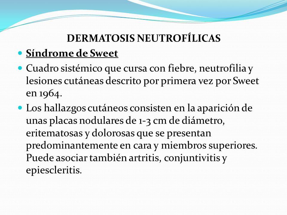 DERMATOSIS NEUTROFÍLICAS Síndrome de Sweet Cuadro sistémico que cursa con fiebre, neutrofilia y lesiones cutáneas descrito por primera vez por Sweet e