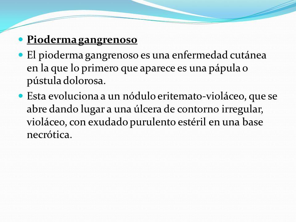 Pioderma gangrenoso El pioderma gangrenoso es una enfermedad cutánea en la que lo primero que aparece es una pápula o pústula dolorosa. Esta evolucion