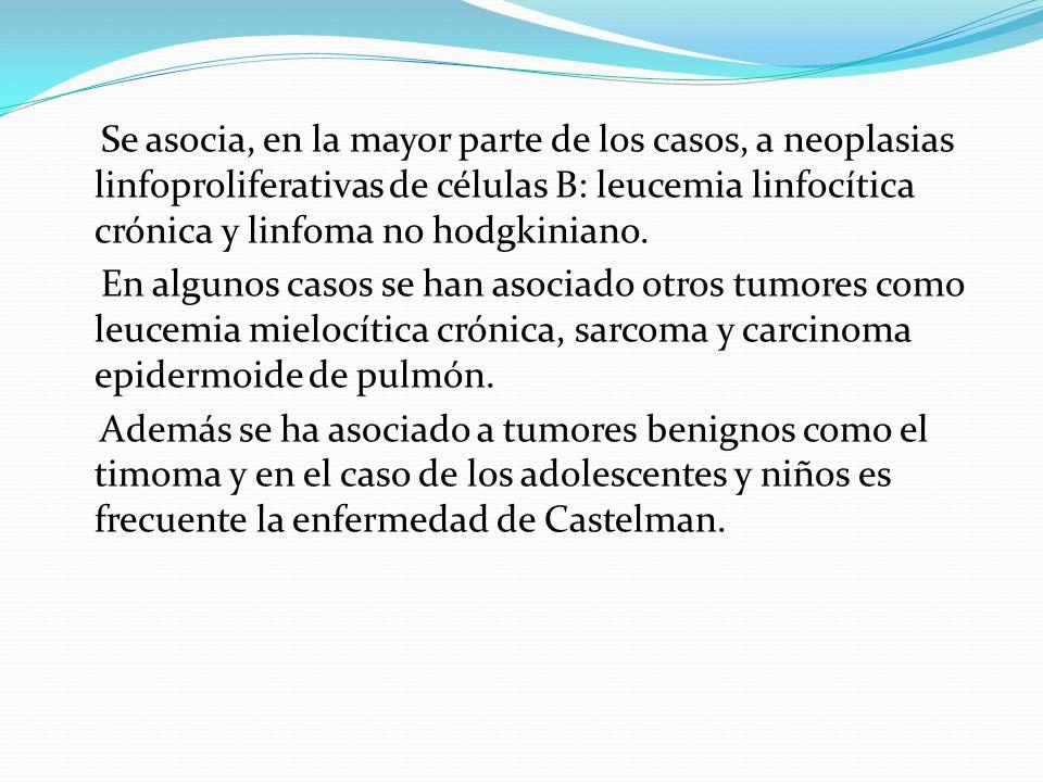 Se asocia, en la mayor parte de los casos, a neoplasias linfoproliferativas de células B: leucemia linfocítica crónica y linfoma no hodgkiniano. En al