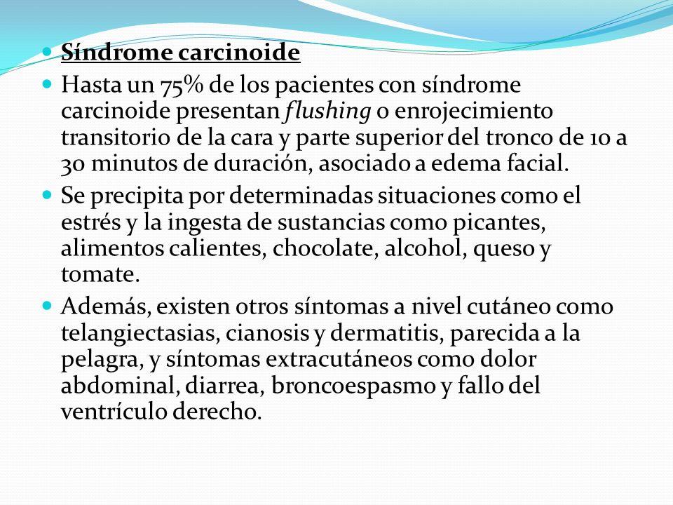 Síndrome carcinoide Hasta un 75% de los pacientes con síndrome carcinoide presentan flushing o enrojecimiento transitorio de la cara y parte superior