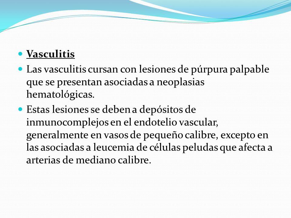 Vasculitis Las vasculitis cursan con lesiones de púrpura palpable que se presentan asociadas a neoplasias hematológicas. Estas lesiones se deben a dep