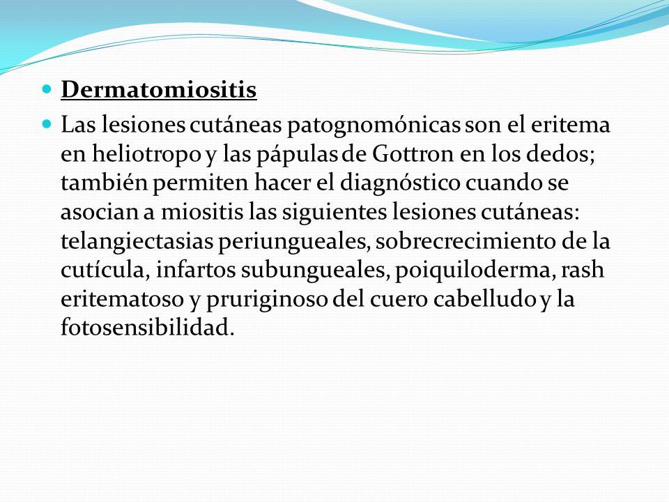 Dermatomiositis Las lesiones cutáneas patognomónicas son el eritema en heliotropo y las pápulas de Gottron en los dedos; también permiten hacer el dia