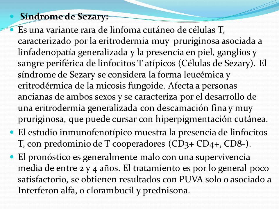Síndrome de Sezary: Es una variante rara de linfoma cutáneo de células T, caracterizado por la eritrodermia muy pruriginosa asociada a linfadenopatía