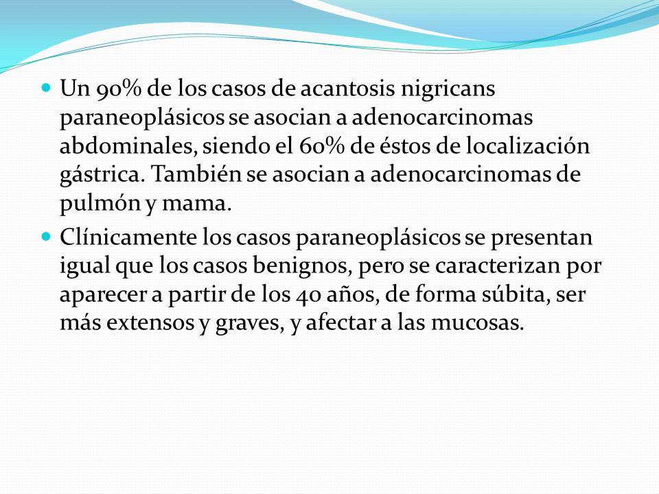 Un 90% de los casos de acantosis nigricans paraneoplásicos se asocian a adenocarcinomas abdominales, siendo el 60% de éstos de localización gástrica.