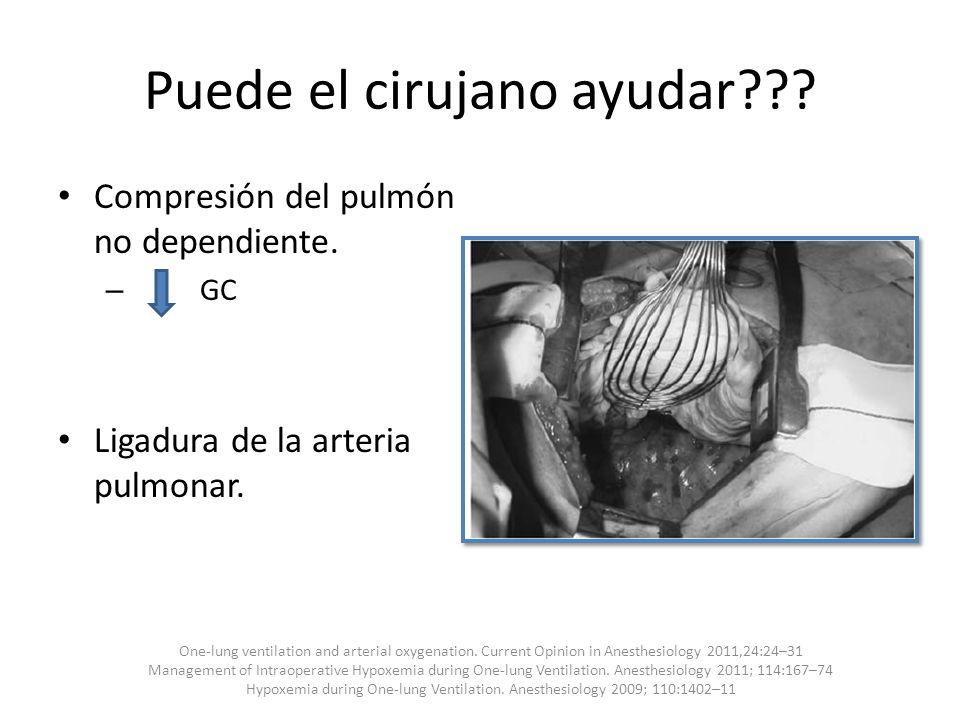 Puede el cirujano ayudar??? Compresión del pulmón no dependiente. – GC Ligadura de la arteria pulmonar. One-lung ventilation and arterial oxygenation.