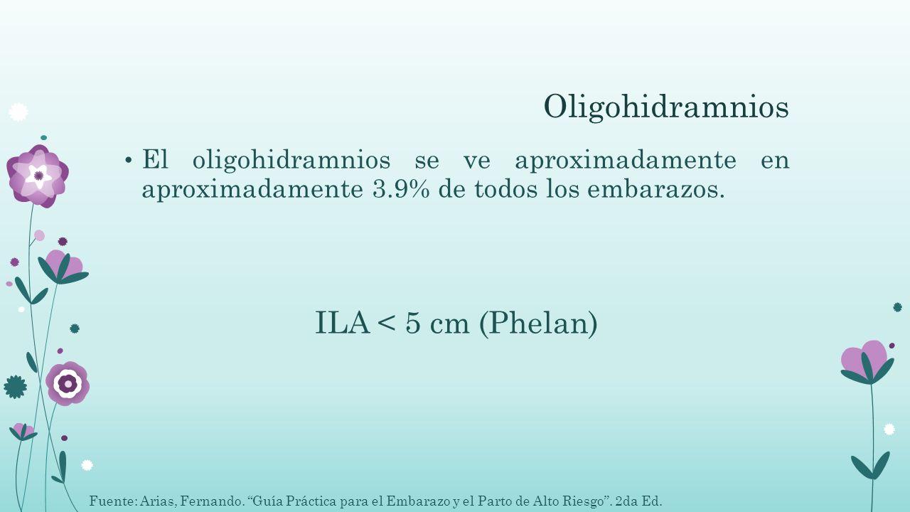 Oligohidramnios El oligohidramnios se ve aproximadamente en aproximadamente 3.9% de todos los embarazos. ILA < 5 cm (Phelan) Fuente: Arias, Fernando.
