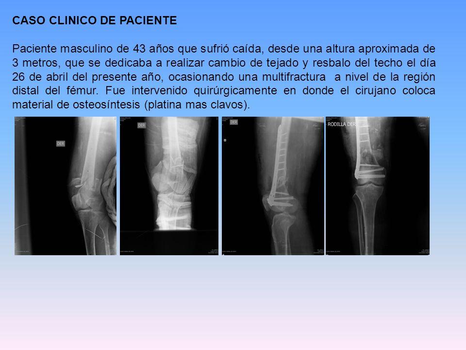 CASO CLINICO DE PACIENTE Paciente masculino de 43 años que sufrió caída, desde una altura aproximada de 3 metros, que se dedicaba a realizar cambio de