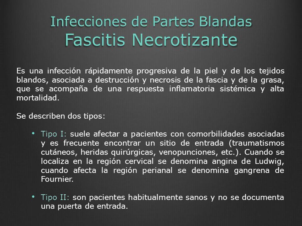 Infecciones de Partes Blandas Fascitis Necrotizante Es una infección rápidamente progresiva de la piel y de los tejidos blandos, asociada a destrucció
