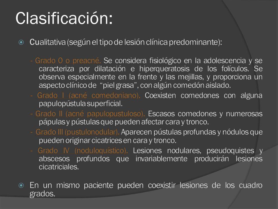 Clasificación: