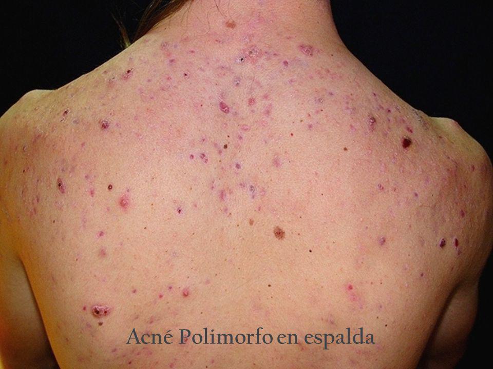 Acné Polimorfo en espalda