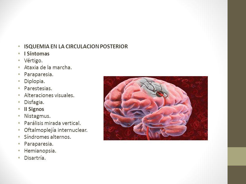 ISQUEMIA EN LA CIRCULACION POSTERIOR I Síntomas Vértigo.