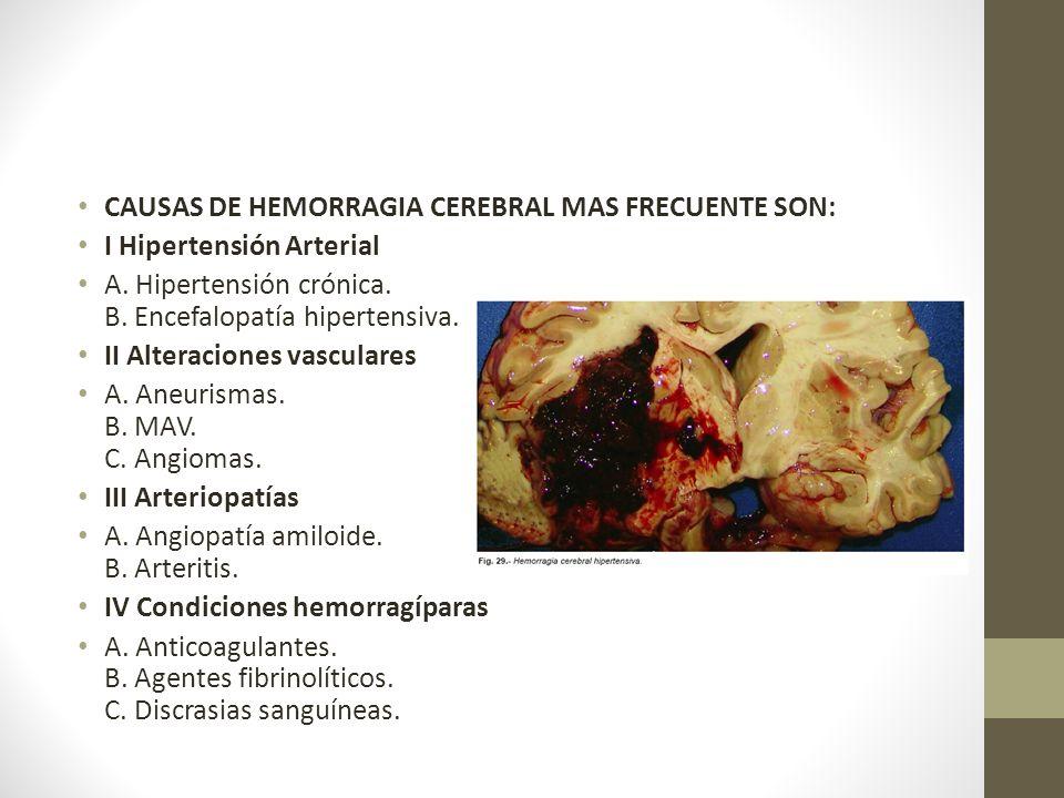 CAUSAS DE HEMORRAGIA CEREBRAL MAS FRECUENTE SON: I Hipertensión Arterial A.