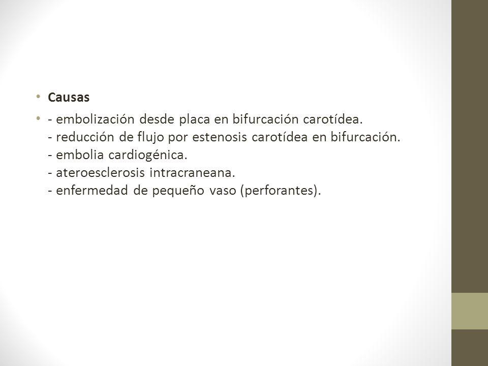 Causas - embolización desde placa en bifurcación carotídea.