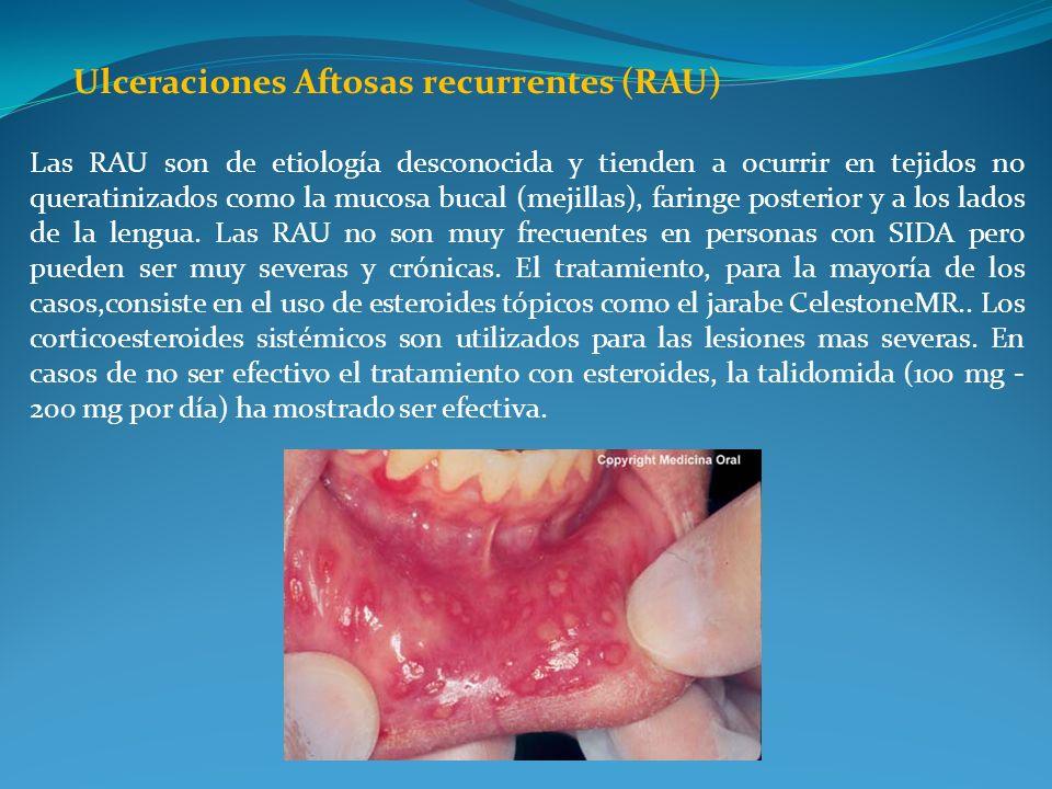 Ulceraciones Aftosas recurrentes (RAU) Las RAU son de etiología desconocida y tienden a ocurrir en tejidos no queratinizados como la mucosa bucal (mej