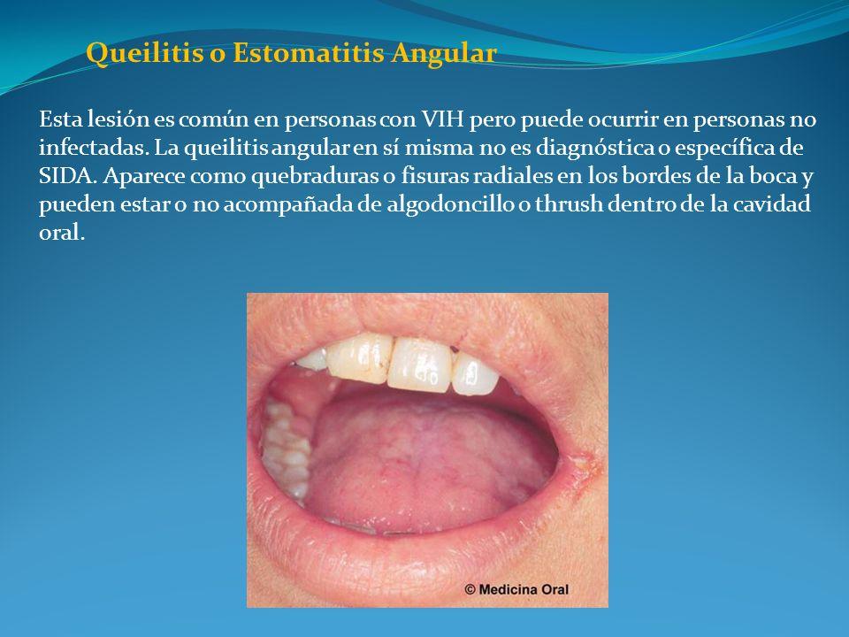 Queilitis o Estomatitis Angular Esta lesión es común en personas con VIH pero puede ocurrir en personas no infectadas. La queilitis angular en sí mism