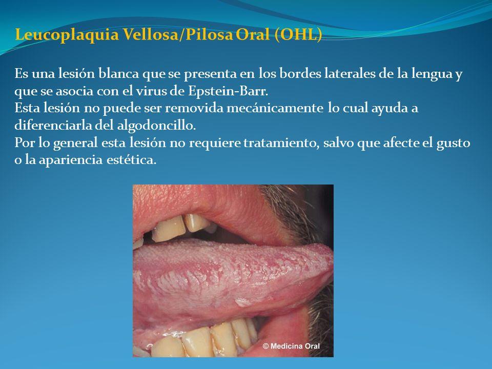 Es una lesión blanca que se presenta en los bordes laterales de la lengua y que se asocia con el virus de Epstein-Barr. Esta lesión no puede ser remov