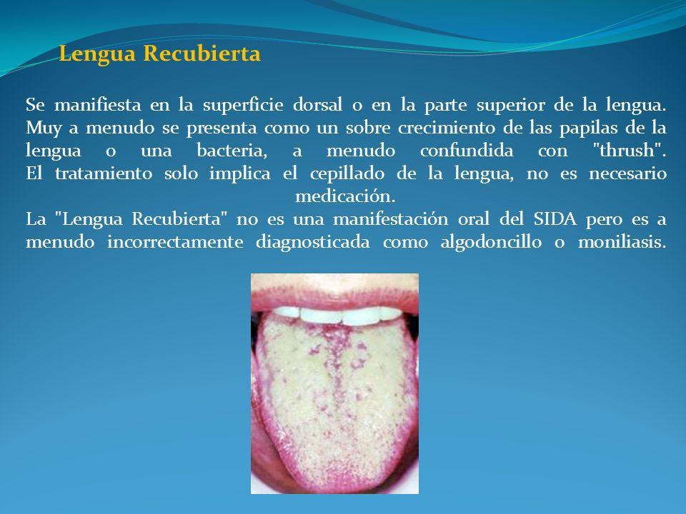 Lengua Recubierta Se manifiesta en la superficie dorsal o en la parte superior de la lengua. Muy a menudo se presenta como un sobre crecimiento de las
