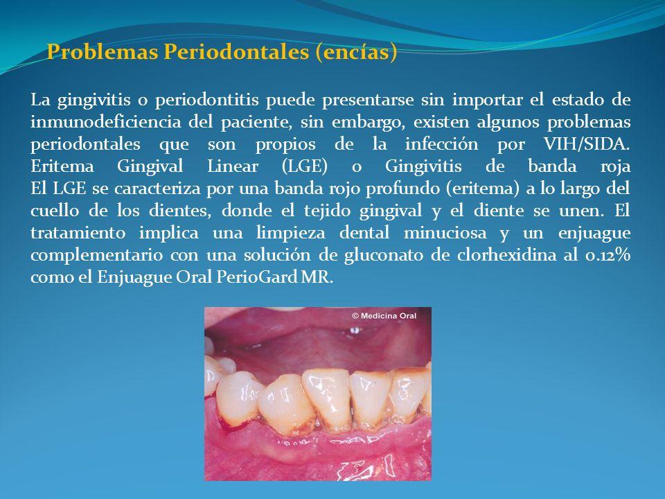 Problemas Periodontales (encías) La gingivitis o periodontitis puede presentarse sin importar el estado de inmunodeficiencia del paciente, sin embargo