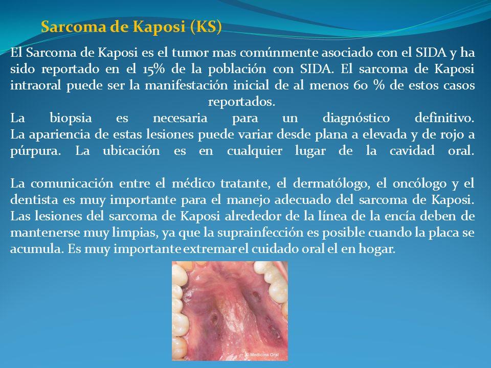 Sarcoma de Kaposi (KS) El Sarcoma de Kaposi es el tumor mas comúnmente asociado con el SIDA y ha sido reportado en el 15% de la población con SIDA. El