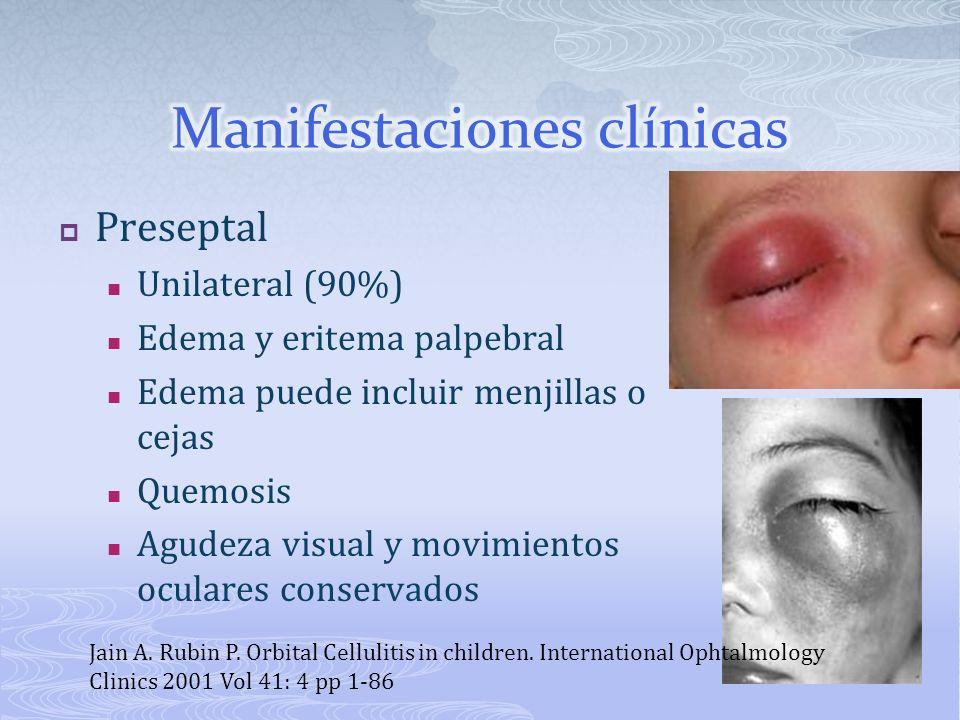 Preseptal Unilateral (90%) Edema y eritema palpebral Edema puede incluir menjillas o cejas Quemosis Agudeza visual y movimientos oculares conservados