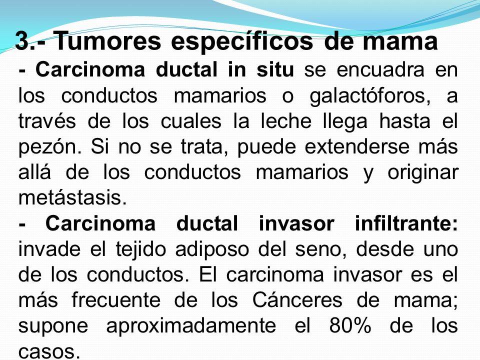 3.- Tumores específicos de mama - Carcinoma ductal in situ se encuadra en los conductos mamarios o galactóforos, a través de los cuales la leche llega