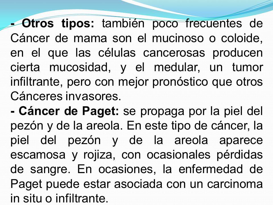 - Otros tipos: también poco frecuentes de Cáncer de mama son el mucinoso o coloide, en el que las células cancerosas producen cierta mucosidad, y el m