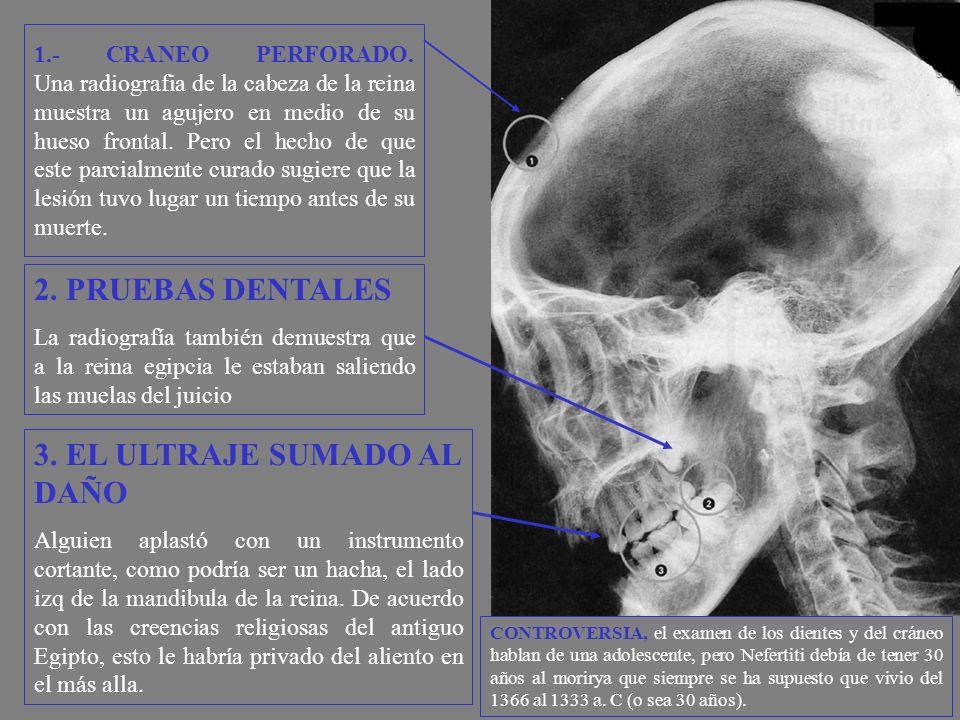 1.- CRANEO PERFORADO. Una radiografia de la cabeza de la reina muestra un agujero en medio de su hueso frontal. Pero el hecho de que este parcialmente