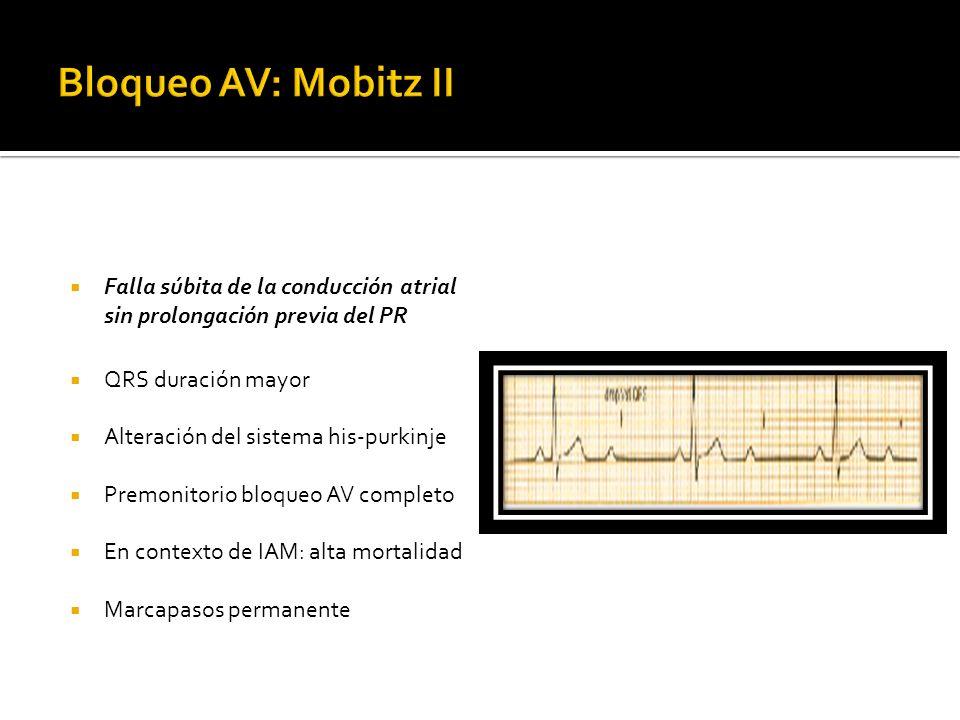 Falla súbita de la conducción atrial sin prolongación previa del PR QRS duración mayor Alteración del sistema his-purkinje Premonitorio bloqueo AV com