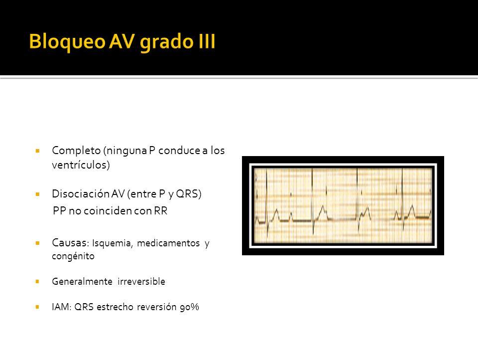 Completo (ninguna P conduce a los ventrículos) Disociación AV (entre P y QRS) PP no coinciden con RR Causas: Isquemia, medicamentos y congénito Genera