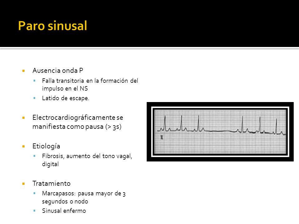 Ausencia onda P Falla transitoria en la formación del impulso en el NS Latido de escape. Electrocardiográficamente se manifiesta como pausa (> 3s) Eti
