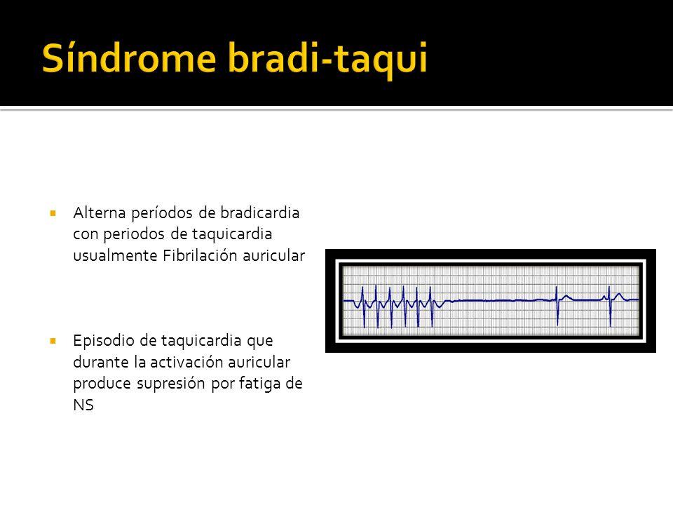 Alterna períodos de bradicardia con periodos de taquicardia usualmente Fibrilación auricular Episodio de taquicardia que durante la activación auricul