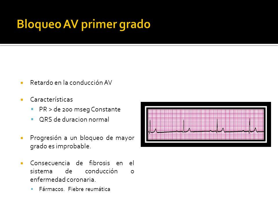 Retardo en la conducción AV Características PR > de 200 mseg Constante QRS de duracion normal Progresión a un bloqueo de mayor grado es improbable. Co