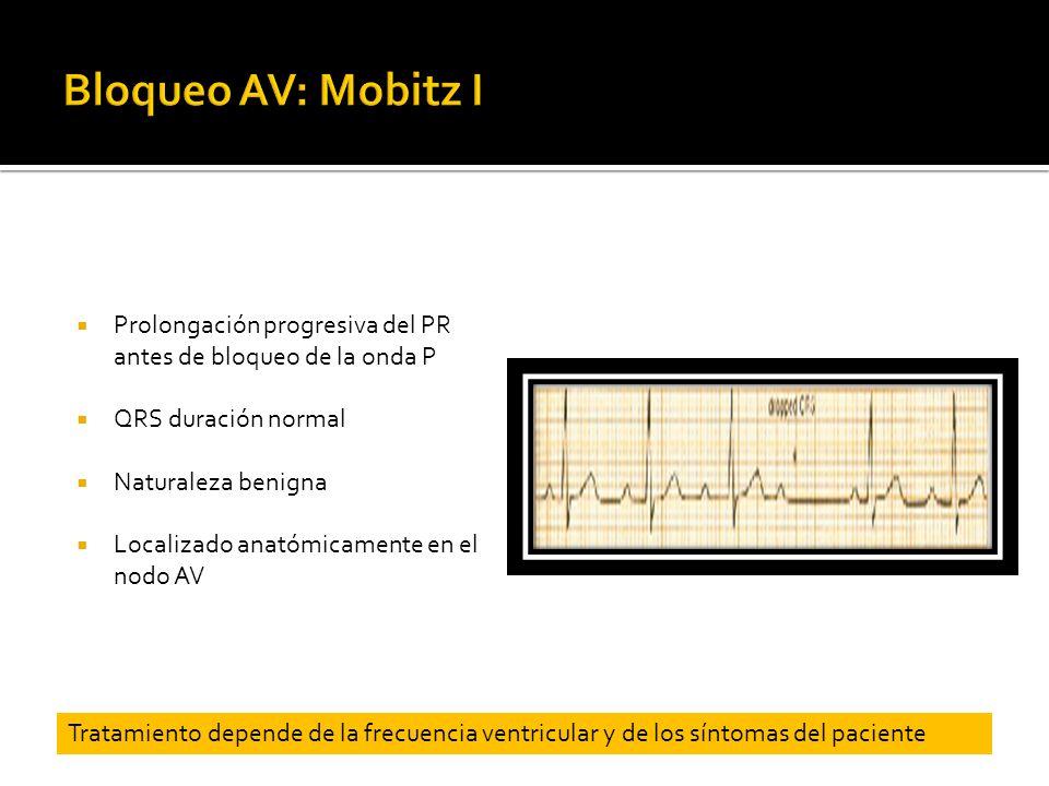Prolongación progresiva del PR antes de bloqueo de la onda P QRS duración normal Naturaleza benigna Localizado anatómicamente en el nodo AV Tratamient