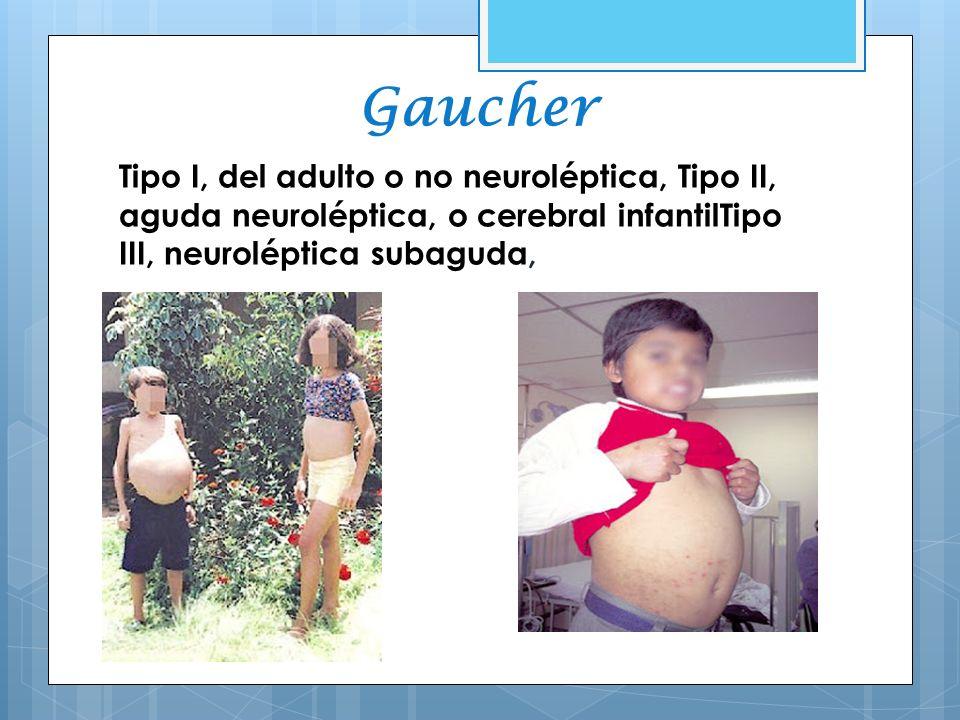 Gaucher Tipo I, del adulto o no neuroléptica, Tipo II, aguda neuroléptica, o cerebral infantilTipo III, neuroléptica subaguda,