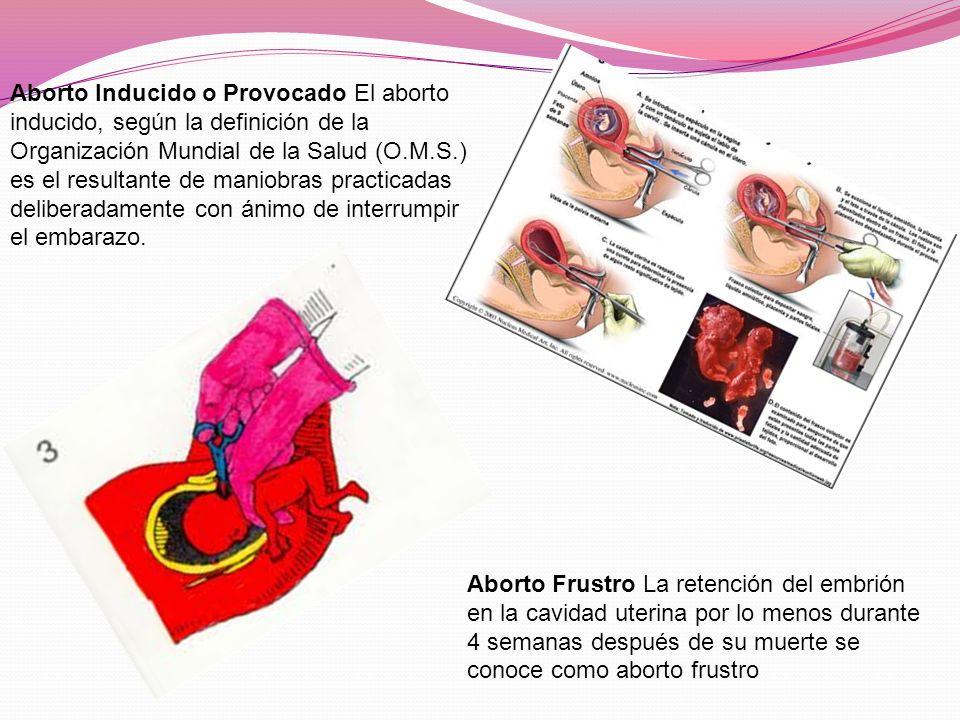 Aborto Frustro La retención del embrión en la cavidad uterina por lo menos durante 4 semanas después de su muerte se conoce como aborto frustro Aborto Inducido o Provocado El aborto inducido, según la definición de la Organización Mundial de la Salud (O.M.S.) es el resultante de maniobras practicadas deliberadamente con ánimo de interrumpir el embarazo.