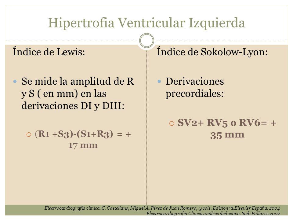 Hipertrofia Ventricular Izquierda Índice de Lewis: Se mide la amplitud de R y S ( en mm) en las derivaciones DI y DIII: (R1 +S3)-(S1+R3) = + 17 mm Ele