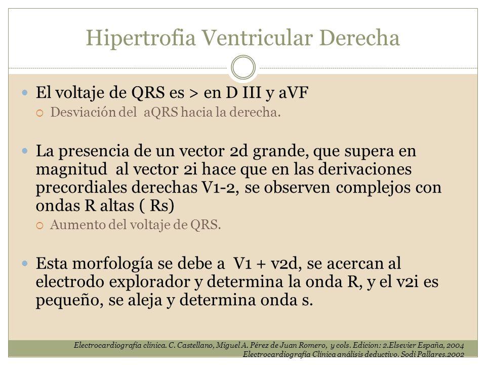Hipertrofia Ventricular Derecha El voltaje de QRS es > en D III y aVF Desviación del aQRS hacia la derecha. La presencia de un vector 2d grande, que s