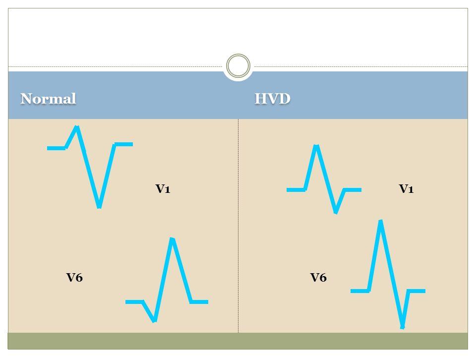 Normal HVD V1 V6 V1 V6