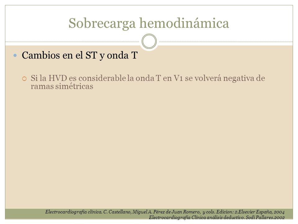 Sobrecarga hemodinámica Cambios en el ST y onda T Si la HVD es considerable la onda T en V1 se volverá negativa de ramas simétricas Electrocardiografí