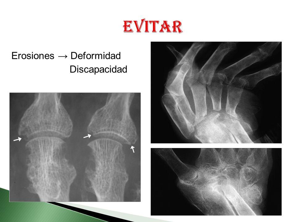 Erosiones Deformidad Discapacidad