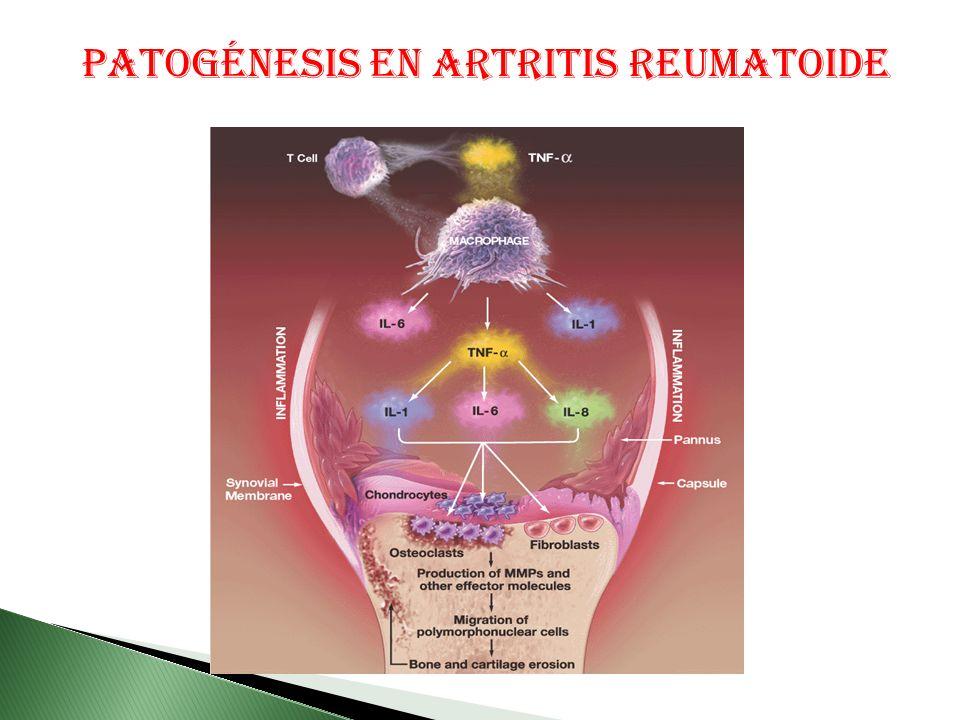 Patogénesis en Artritis Reumatoide