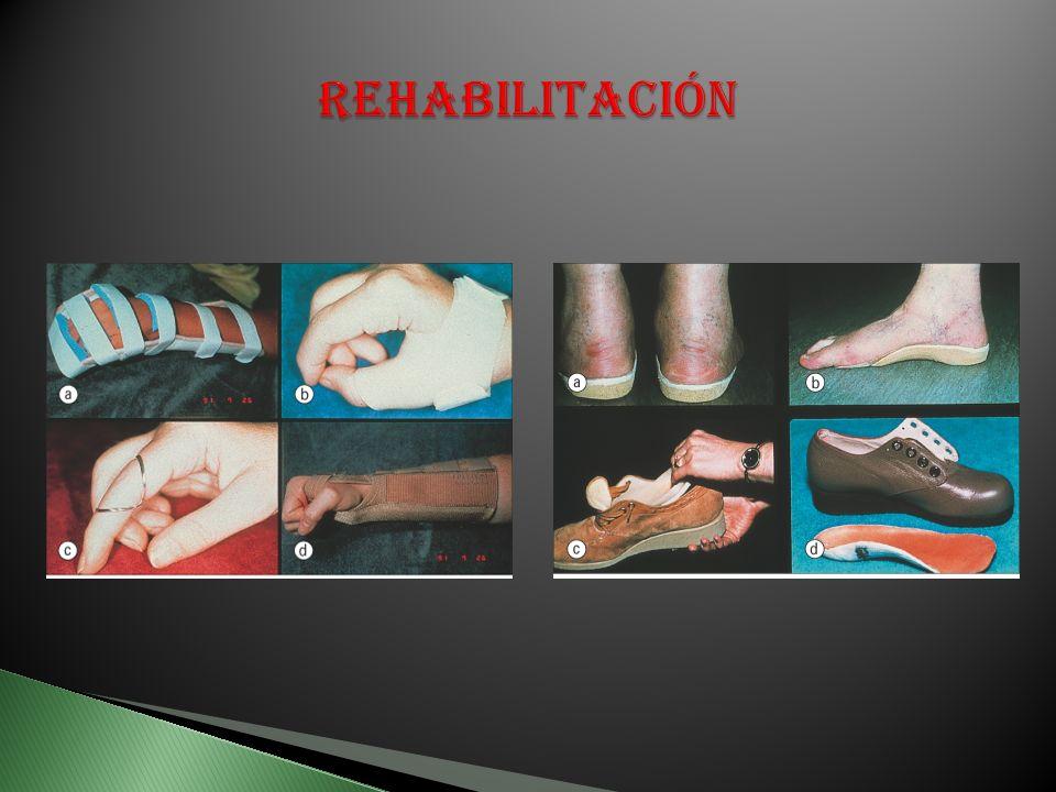 Inaceptables niveles de dolor Perdida arcos de movimiento Limitación de la función Estado funcional prequirúrgico importante