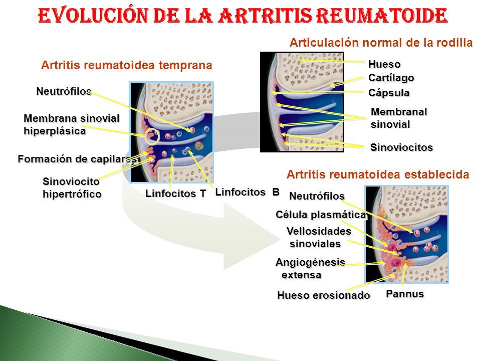 Formación de capilares Membrana sinovial hiperplásica hiperplásica SinoviocitohipertróficoSinoviocitohipertrófico NeutrófilosNeutrófilos Linfocitos T Linfocitos B Artritis reumatoidea temprana Artritis reumatoidea establecida Vellosidades sinoviales sinovialesVellosidades Angiogénesis extensa extensaAngiogénesis Célula plasmática PannusPannus Hueso erosionado NeutrófilosNeutrófilos CápsulaCápsula HuesoHueso MembranalsinovialMembranalsinovial SinoviocitosSinoviocitos Articulación normal de la rodilla CartílagoCartílago Evolución de la artritis reumatoide