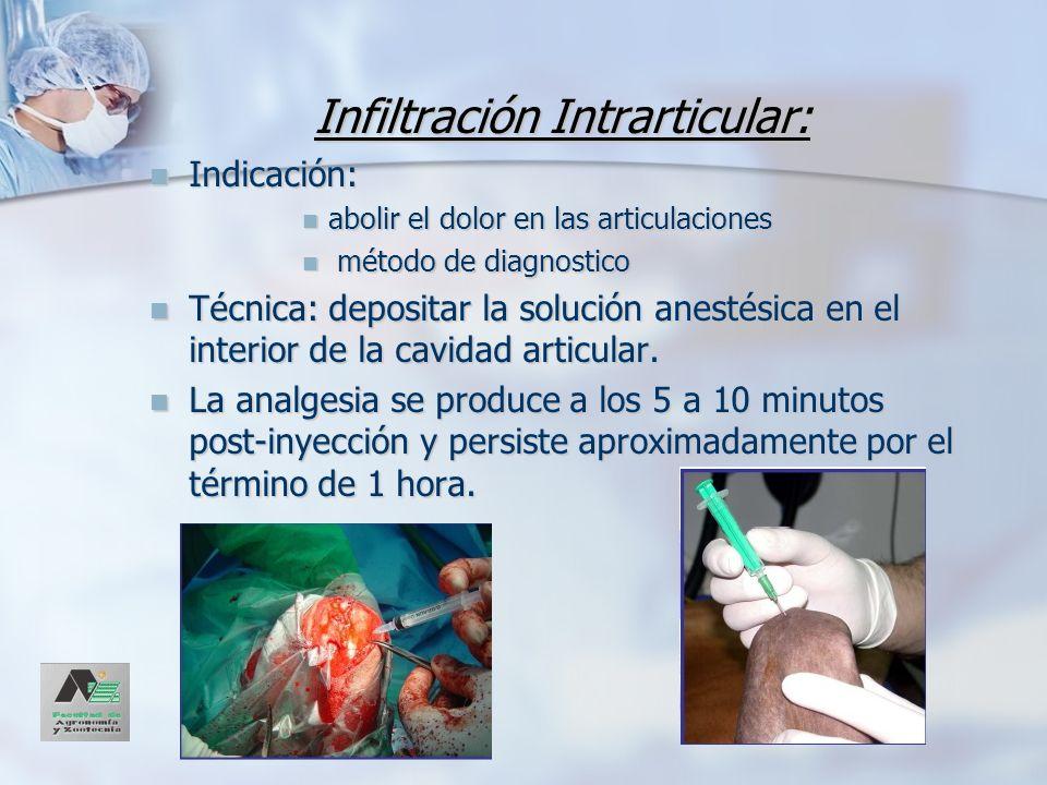 Infiltración Intrarticular: Indicación: Indicación: abolir el dolor en las articulaciones abolir el dolor en las articulaciones método de diagnostico
