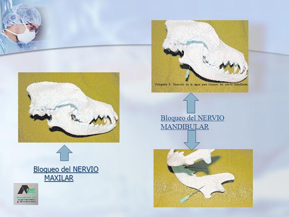 Bloqueo del NERVIO MAXILAR Bloqueo del NERVIO MANDIBULAR