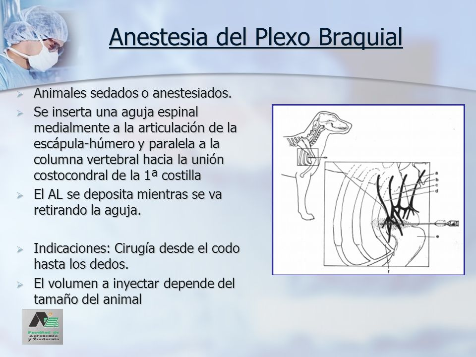 Anestesia del Plexo Braquial Animales sedados o anestesiados. Animales sedados o anestesiados. Se inserta una aguja espinal medialmente a la articulac