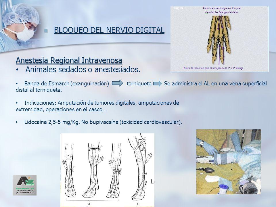 BLOQUEO DEL NERVIO DIGITAL BLOQUEO DEL NERVIO DIGITAL Anestesia Regional Intravenosa Animales sedados o anestesiados. Banda de Esmarch (exanguinación)