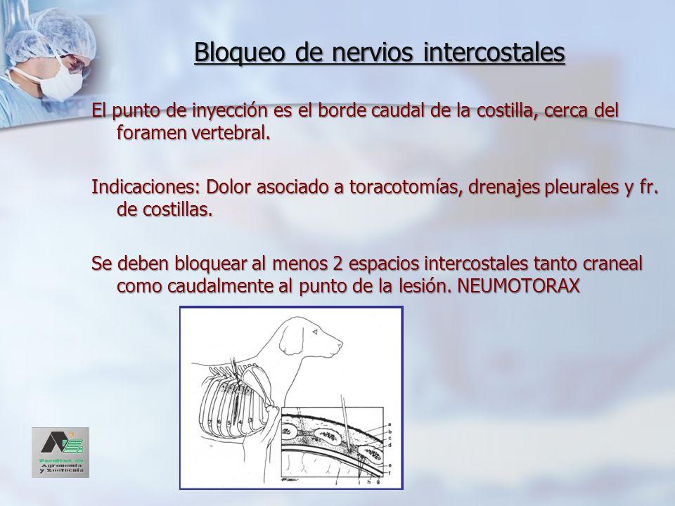 Bloqueo de nervios intercostales El punto de inyección es el borde caudal de la costilla, cerca del foramen vertebral. Indicaciones: Dolor asociado a